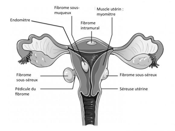 Fibromes